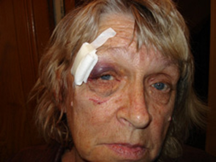 Ginette Skandrani aggressée